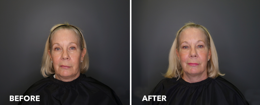 <who>Photo Credit: Lakeshore Vein & Aesthetics Clinic</who> Soft Lift before & after